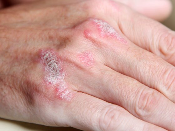 psoriasis on knuckles