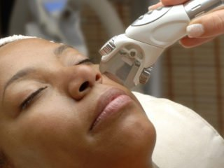 laser cosmetic procedure