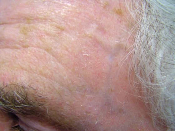 Subtle early Actinic Keratosis. Some of these cannot be seen but the skin feels rough to the touch